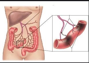 Nguyên nhân và triệu chứng điển hình của bệnh nhồi máu mạc treo