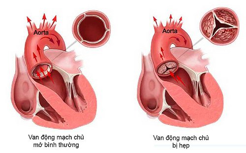 Y Khoa Blog: Bệnh hẹp van động mạch chủ