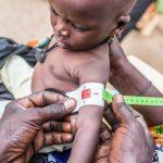 Suy dinh dưỡng trẻ em thể marasmus
