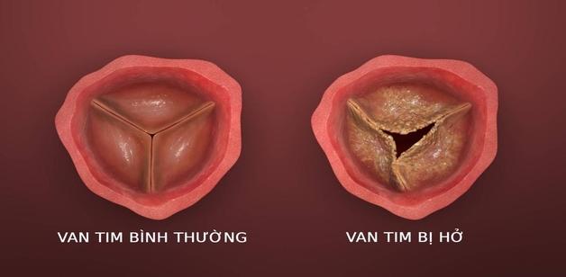 Hở van động mạch chủ là gì