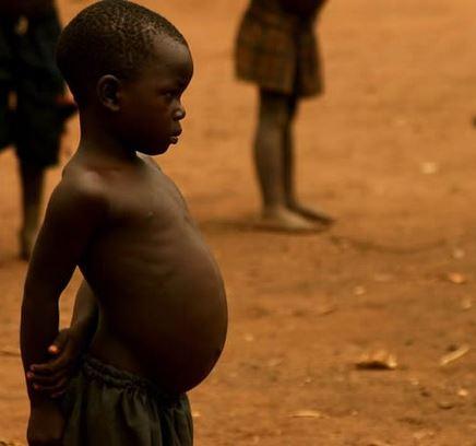 Suy dinh dưỡng trẻ em thể kwashiorkor