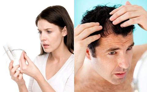 Tình trạng rụng tóc